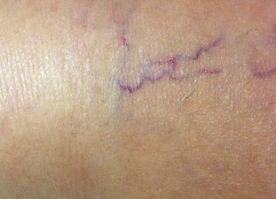 Laser Spider Vein Removal Before