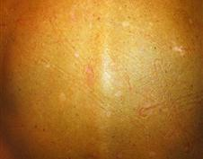 After age spot removal treatment