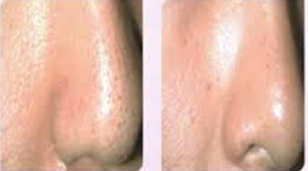 Large Pores on Nose Treatment