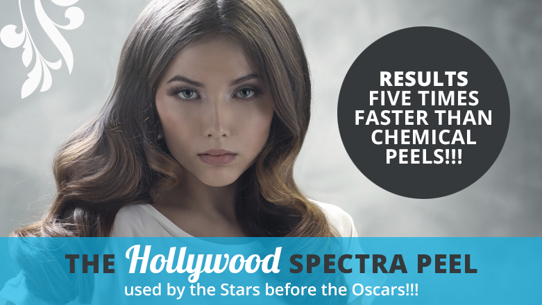 Hollywood spectra peel treatment