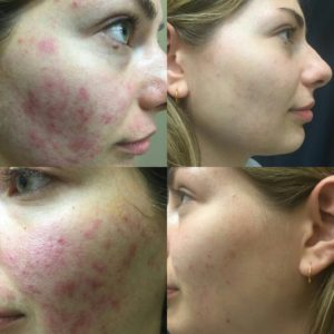 Acne Scar Removal in Toronto